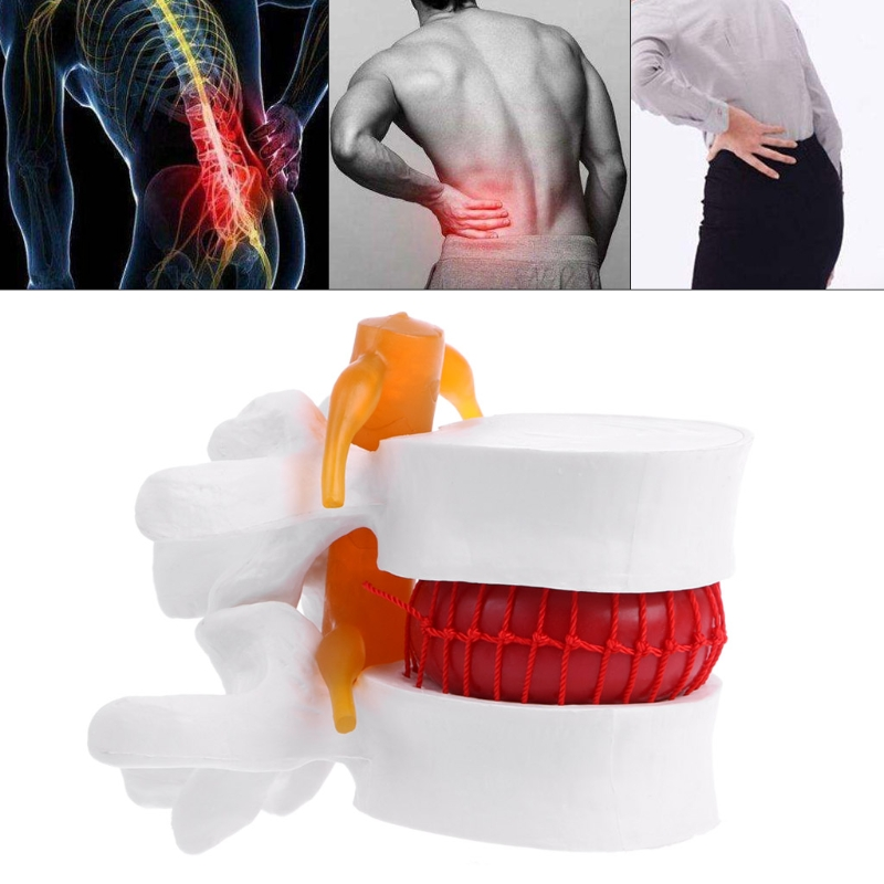 Medical Learn Aid Anatomy Instrume Human Anatomical Lumbar Disc Disease Presentation Model Orthopedic Spine Model spine orthopedics human anatomy medicine demonstration model of human lumbar disc disease gasencx 0024