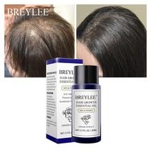цена на Hair Growth Essential Oil 20ml Fast Powerful Hair Products Hair Care Prevent Baldness Anti-Hair Loss Serum Nourishing