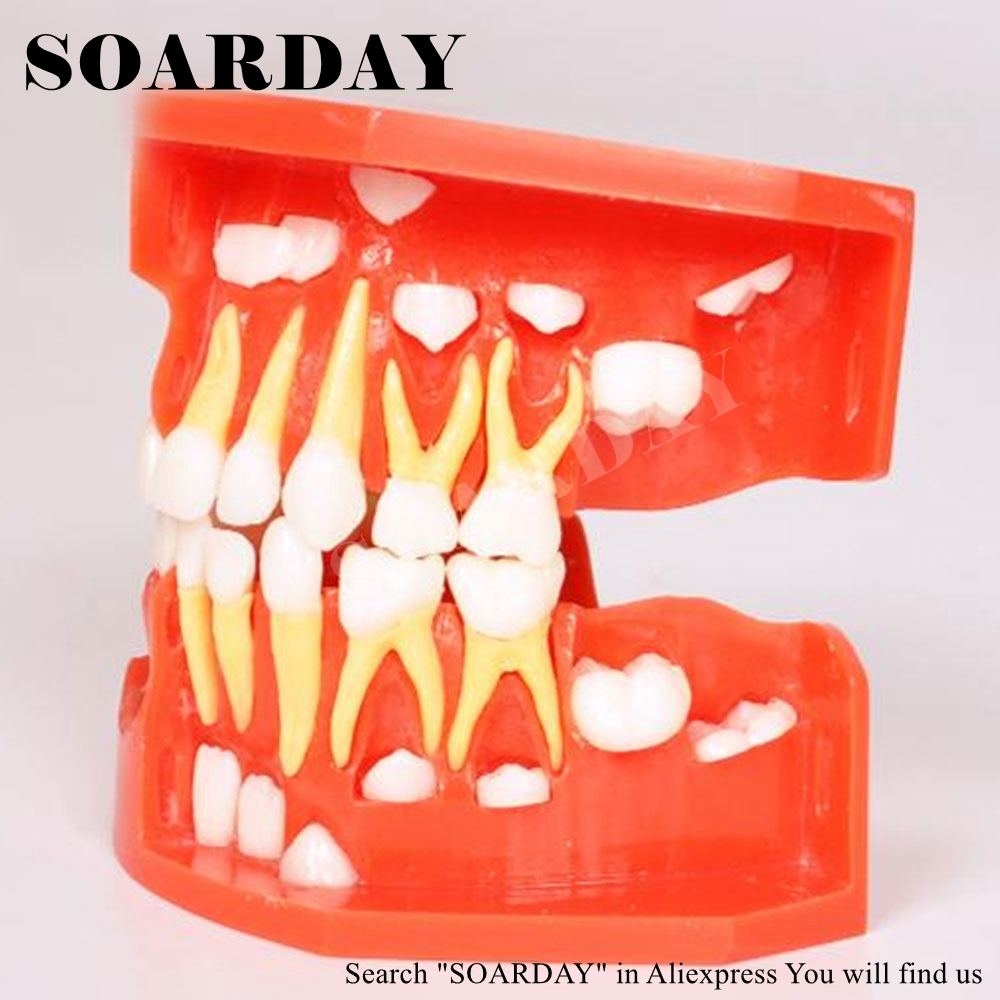 SOARDAY Primary Teeth Alternative Model for 3-6-years-old Child showing the eruption of primary and permanent teeth developmentSOARDAY Primary Teeth Alternative Model for 3-6-years-old Child showing the eruption of primary and permanent teeth development