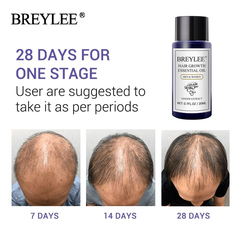 BREYLEE Hair Growth Essential Oil 20ml Fast Powerful Hair Pr