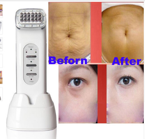 RF Wrinkle Removal Beauty Machine Dot Matrix Facial Thermage Radio Frequency Face Lifting Skin Tightening RF Thermage