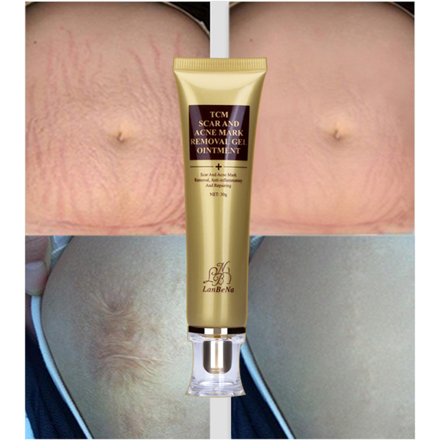 LANBENA Acne Scar Removal Cream Skin Repair Face Cream Acne Spots Acne Treatment Blackhead Whitening Cream Stretch Marks 30ml 5
