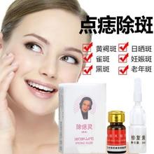 Mole & Skin Tag Repair Solution Painless Mole Skin Dark Spot Repair Face Wart Tag Freckle Repair Cream Oil D068 цена