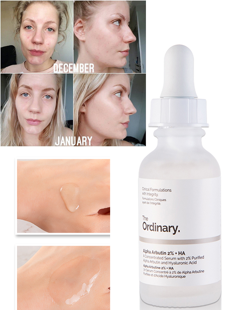 30ML Ordinary Niacinamide Face Serum Vitamin Whitening Oil Balance Reduce Blemishes Brighten Skin Color Essence
