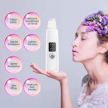 Siêu Âm Da Xước Miếng Rửa Mặt Trị Mụn Đầu Đen Loại Bỏ Mụn Mặt Rung Máy Massage Siêu Âm Bong Tróc Sạch Làm Đẹp Da