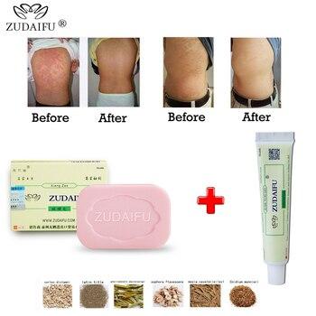 1 piece Zudaifu Sulfur sulphur Soap skin repair clearance Acne Psoriasis Seborrhea Eczema Anti Fungus Bath whitening shampoo