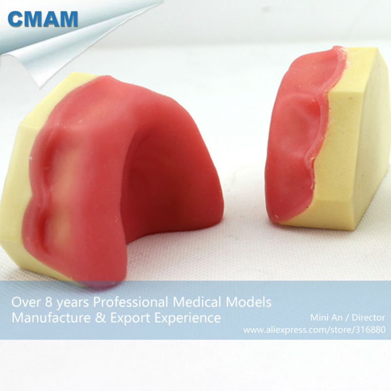 12616 CMAM-IMPLANT05 Dental Teeth Implant Model of The Lower Jaw for Drilling Training effect of dental implant abutment connections on periodontal tissues