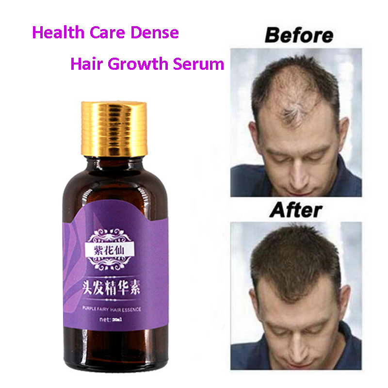 3 Pcs/Lot Hair Essence Hair Growing Liquid Essence Herbaceous Extract Prevent Hair Loss