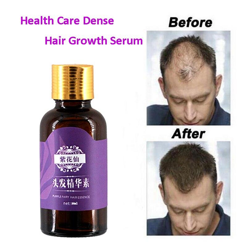 Средство против выпадения волос для мужчин и женщин, средство для быстрого роста волос, 20 мл