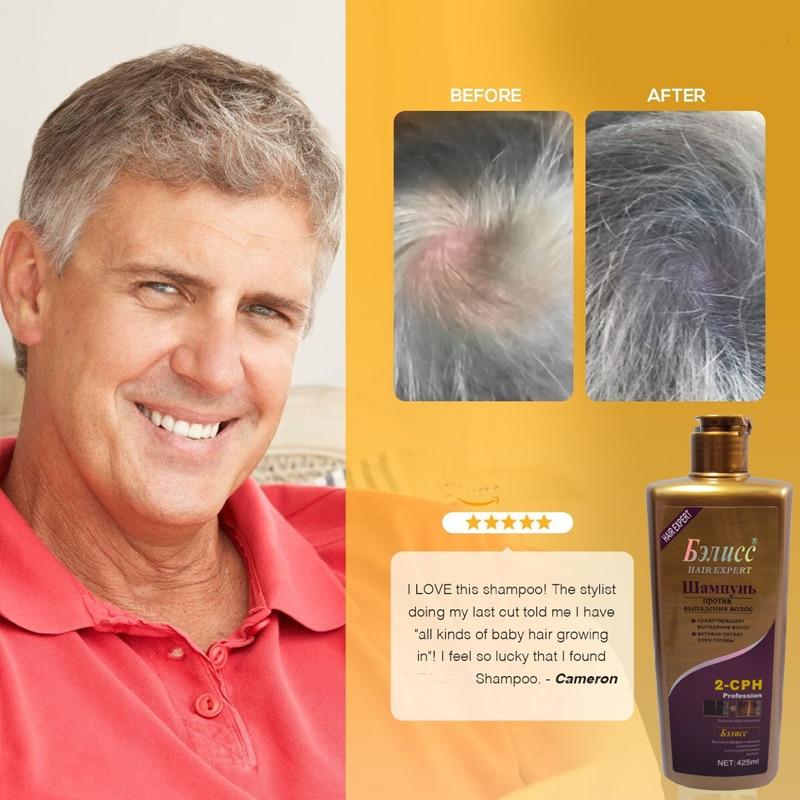 Saç üçün Şampun Saçların böyüməsinə qarşı təbii bitki - Saç qayğı və üslubu - Fotoqrafiya 3
