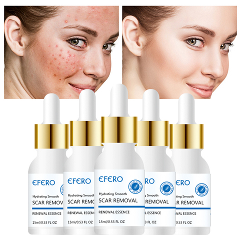 EFERO Face Cream Whitening Cream Acne Removal Essence Serum for Face Skin Care Pimple Spot Acne Treatment Cream for Face Pakistan