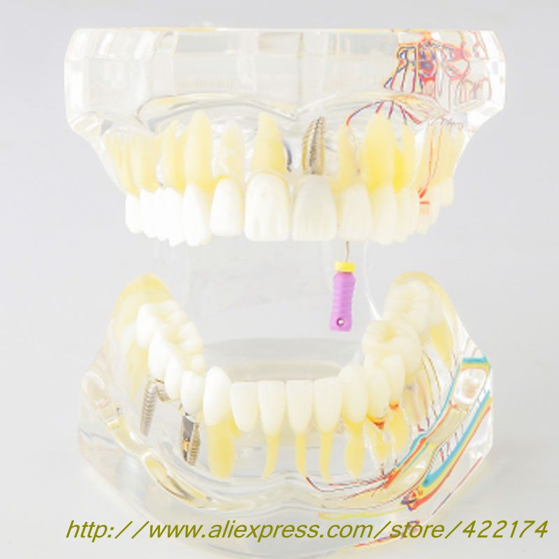 New comprehensive restoration model dental pulp practice model with dental nerve incisor tooth molar tooth with root canal soarday tooth root canal restoration model oral dental training materials tooth nerve model