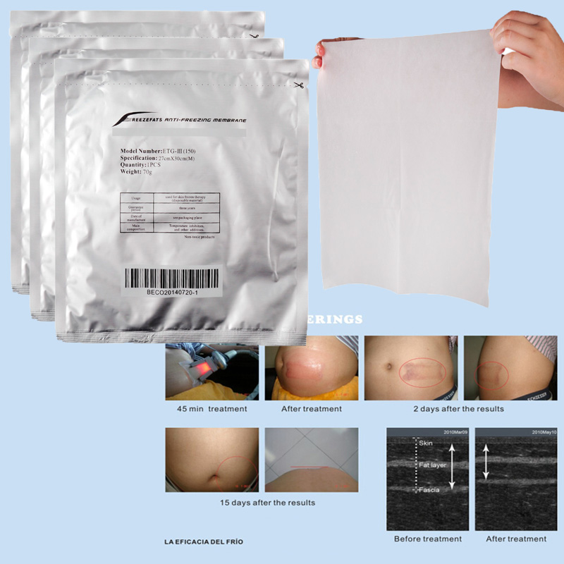 Antifreeze Membranes Freeze Fat Anti Cooling Gel Pad Antifreeze Membrane For Cryotherapy Anti Fat Coolsculpting Treatment