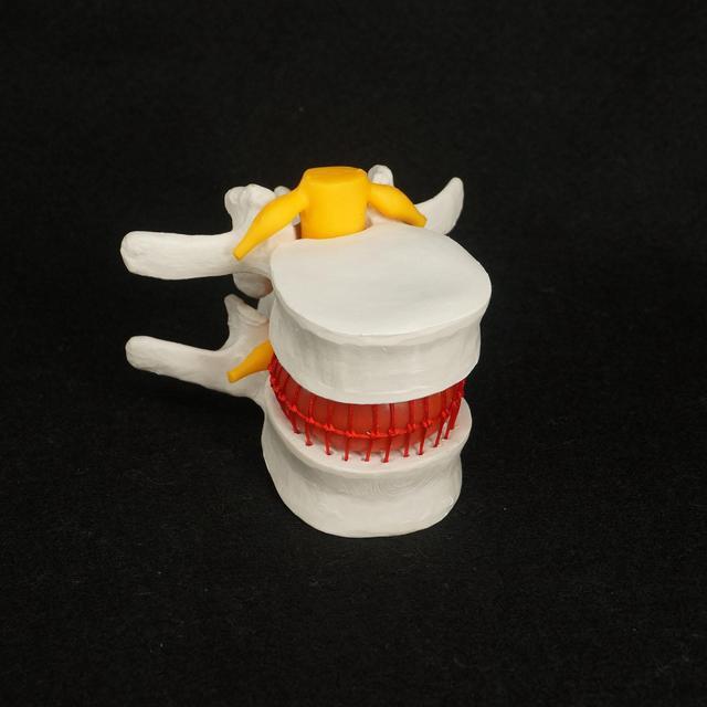 Hernia Hernia Discal Lumbar Vértebras Modelo anatómico Humano ...
