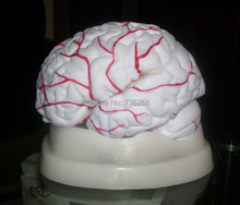 Cerebral Artery Dissection Model,Brain Model,Eight Parts Anatomical Model of the Cerebral Arteries