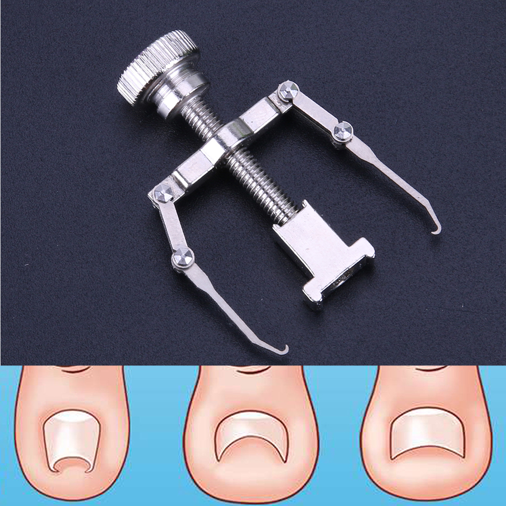 Ingrown Toe Nail Correction Tool Fixer Recover Toe Paronychia Nail Brace  Tools Ingrown Toenails Pedicure Tool with Metal Box