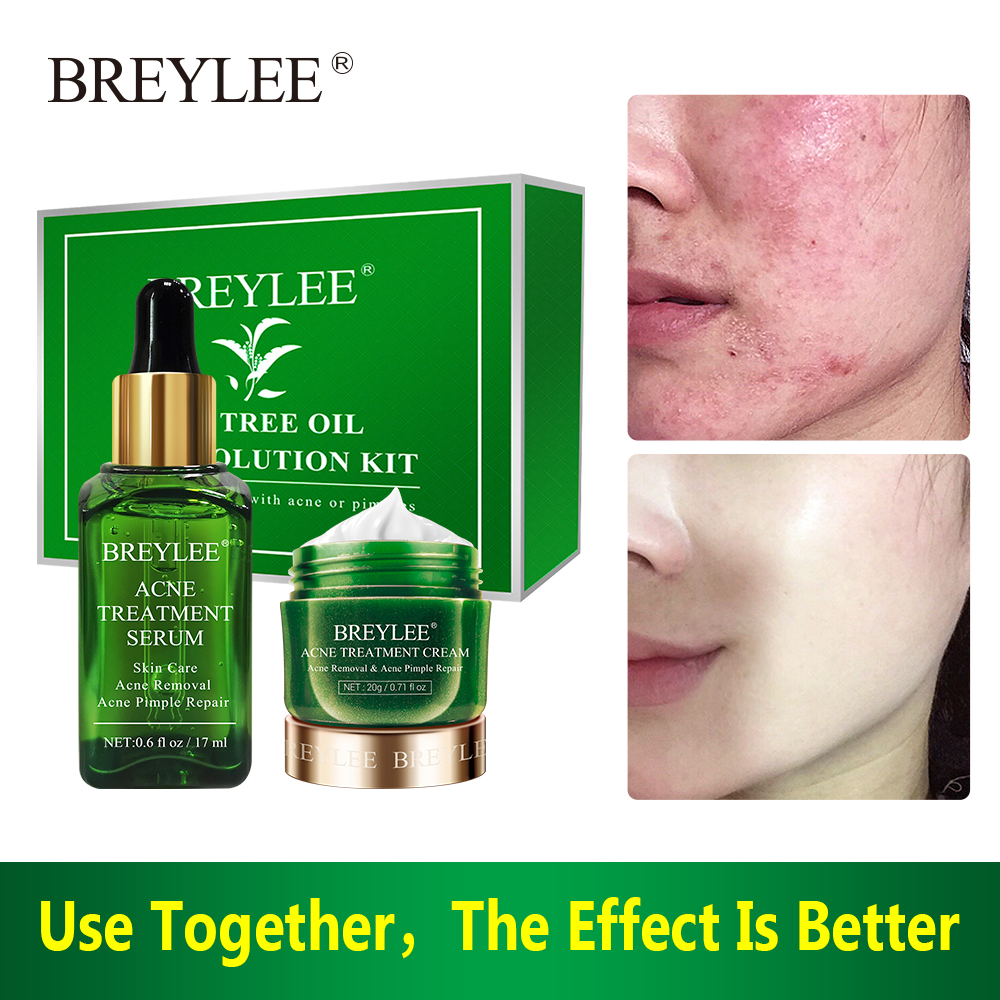 BREYLEE Acne Treatment Serum Cream Mask Acne Solution Kit Spots Pimple Removal Essence Anti Acne Skin Care Face Facial Serum