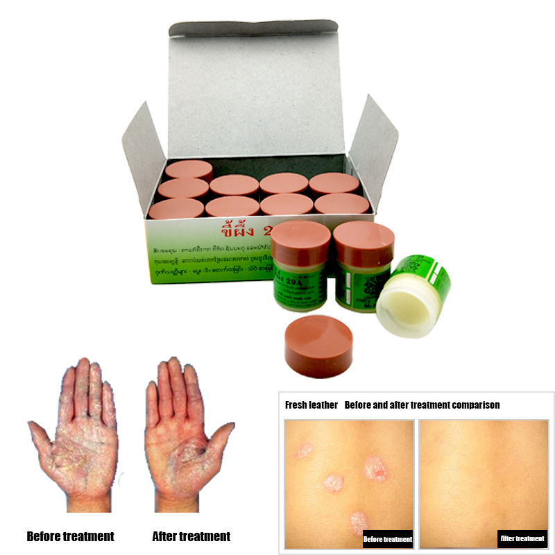 12PCS 29A Natural Cream Works Really Well For Psoriasi Eczma Skin CARE 2pcs psoriasi eczma cream works perfect for all kinds of skin problems patch