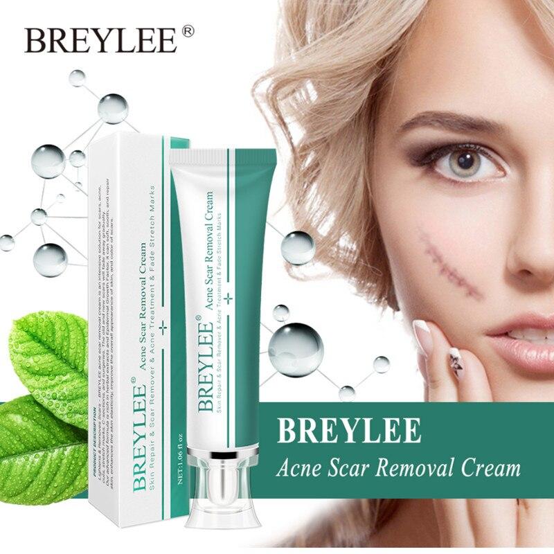 BREYLEE Acne Scar Removal Cream 30g Face Cream Skin Repair