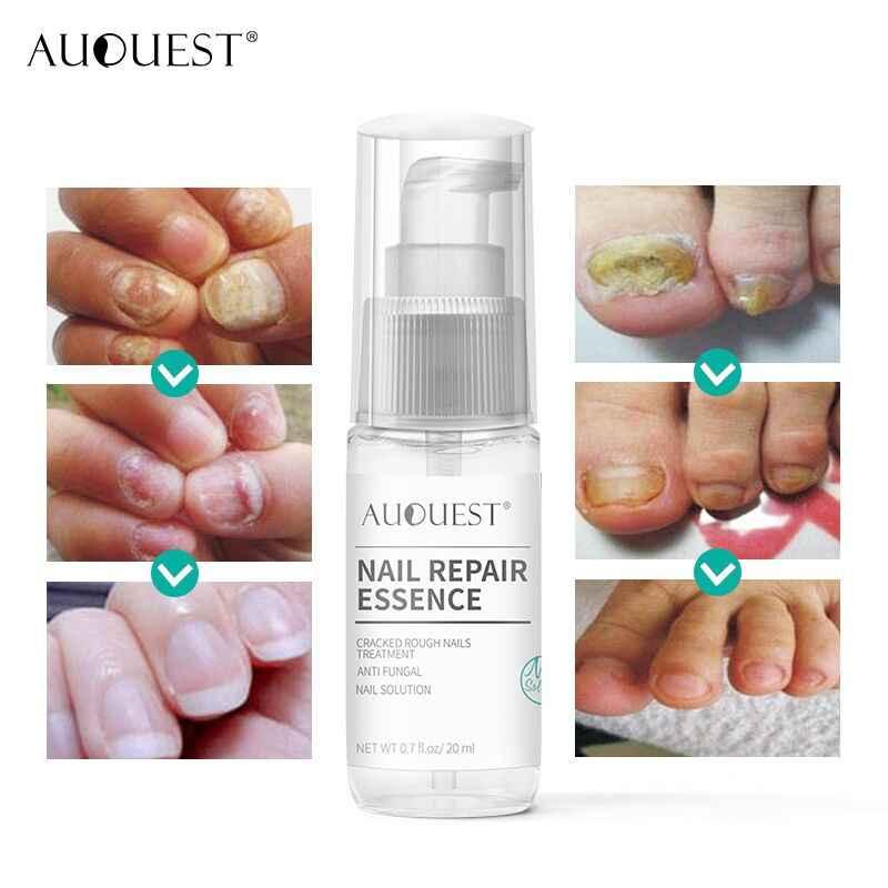 AuQuest Solution pour ongles pour Anti-fongique fissuré rugueux ongles Essence Spray liquide traitement des ongles soins des mains et des pieds
