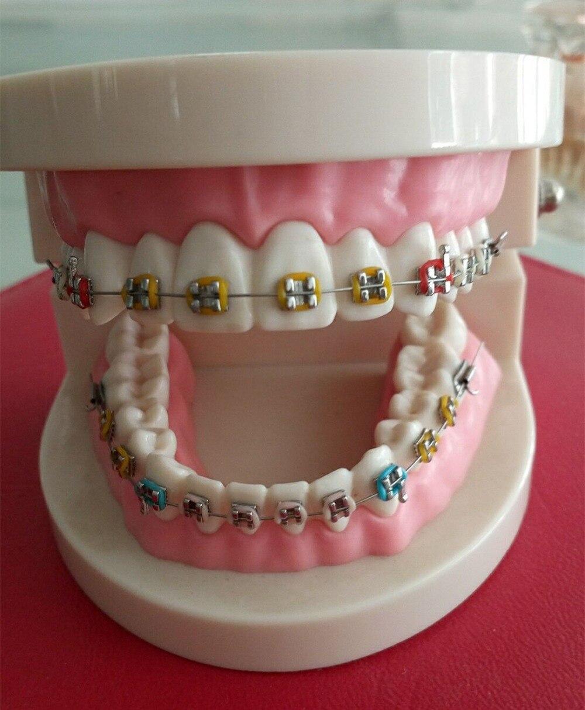 Modèle d'étude orthodontique dentaire, modèle d'éducation, amovible, matériel de clinique dentaire
