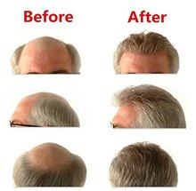 Good human hair men toupee,wigs  BIO base front lace with Skin Knot or Vloop Hair Prosthesise  hair replacement Free shiping