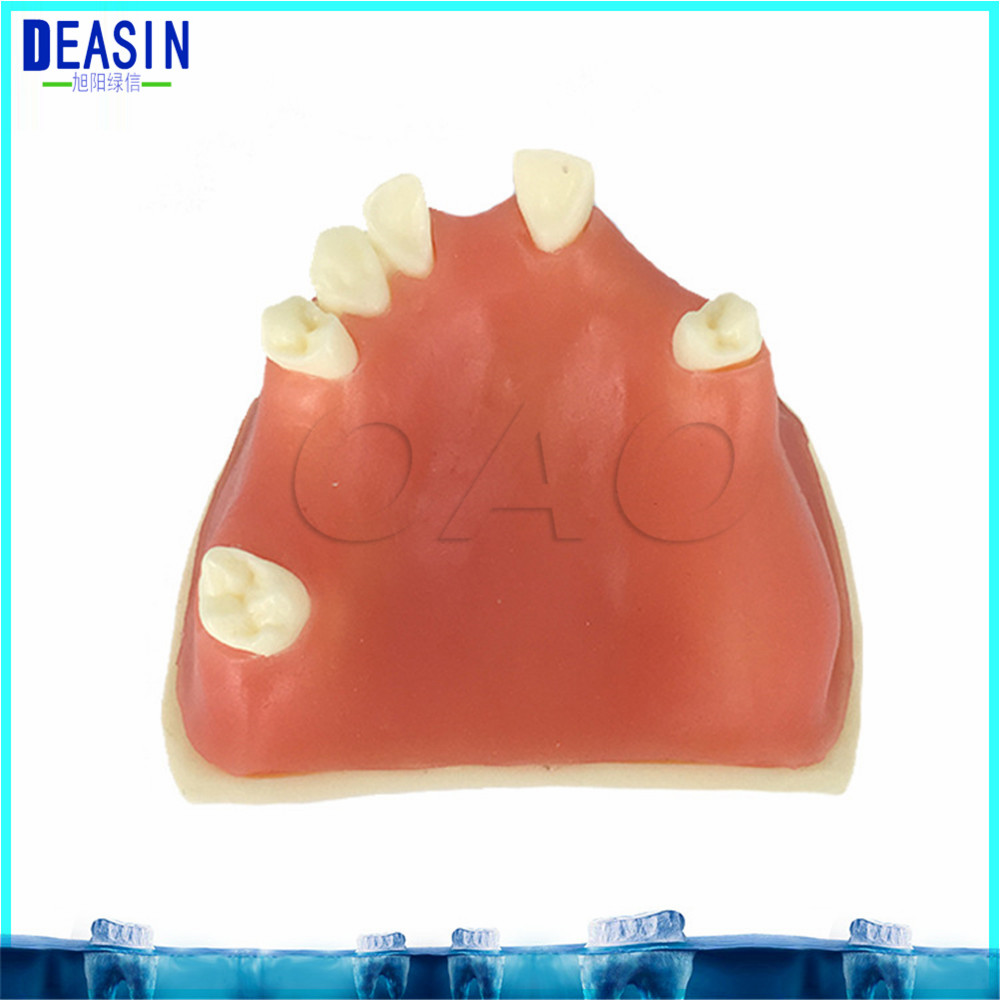 High Quality Implant practice model for teaching dental tooth teeth dentist anatomical anatomy model odontologia soarday children primary teeth alternating transparent model dental root clearly displayed dentist patient communication