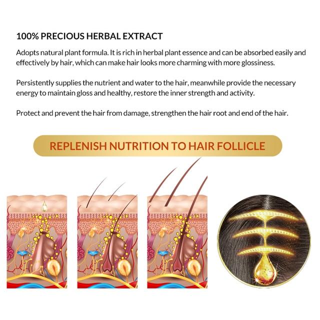 OMYLADY Men Hair Care Hair Growth Essential Oil Essence Original Authentic 100% Hair Loss Liquid Care Beauty Hair Growth Spray 1