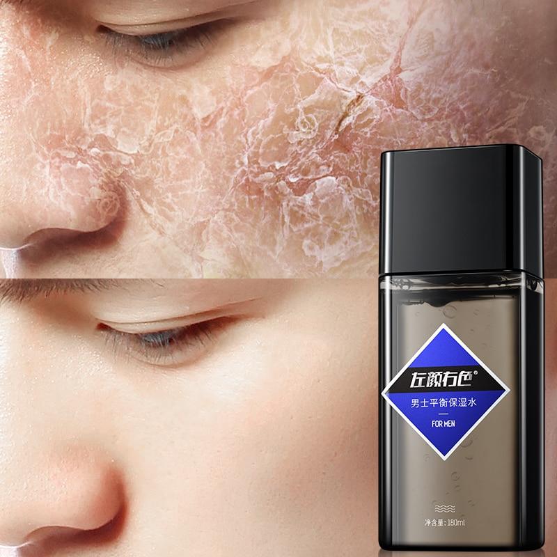 Aufstrebend Joycodes Männlichen Feuchtigkeits Gesichts Toner Anti Aging Schrumpfen Poren Wasser Glatt Bleaching Tonic Gesicht Aftershave Für Männer Hautpflege Toner Schönheit & Gesundheit