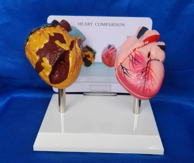 Human Heart Model Medical Teaching Smoking Heart and Normal Heart ...
