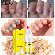 Herbal Antibacterial Nail Treatments Essential Oil Extract Fungus Art Repair Tools Foot Care Improve Infection