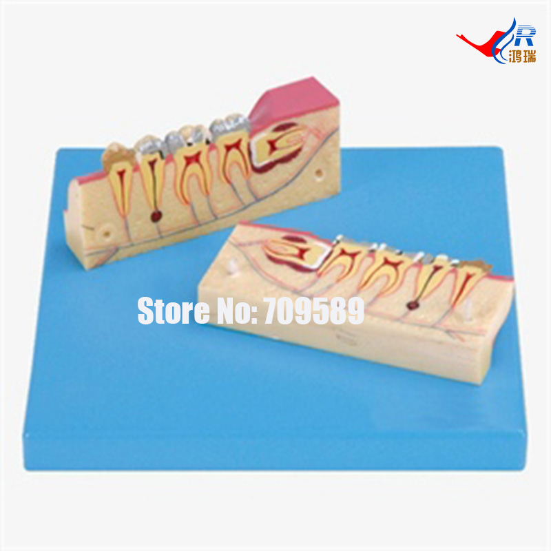 Dissected Model of Teeth Tissue, Dental Care Model development of a set of teeth dental care model