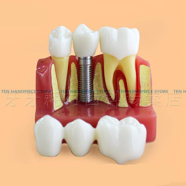 2018 bonne qualité quatre fois le modèle d'implant dentaire Transparent de grossissement, modèle de dent, modèle de pratique d'implant dentaire