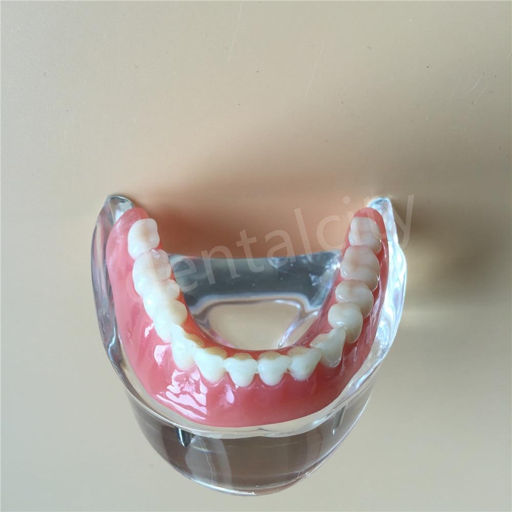 Modèle dentaire avec 4 prothèses d'implant modèle d'étude de dents de démonstration inférieur 6002 - 6
