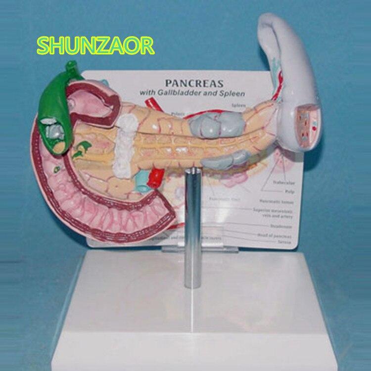 Shunzaor представлен типа желчном пузыре и селезенки поджелудочной железе модель человеческого поражения висцерального анатомическая модель