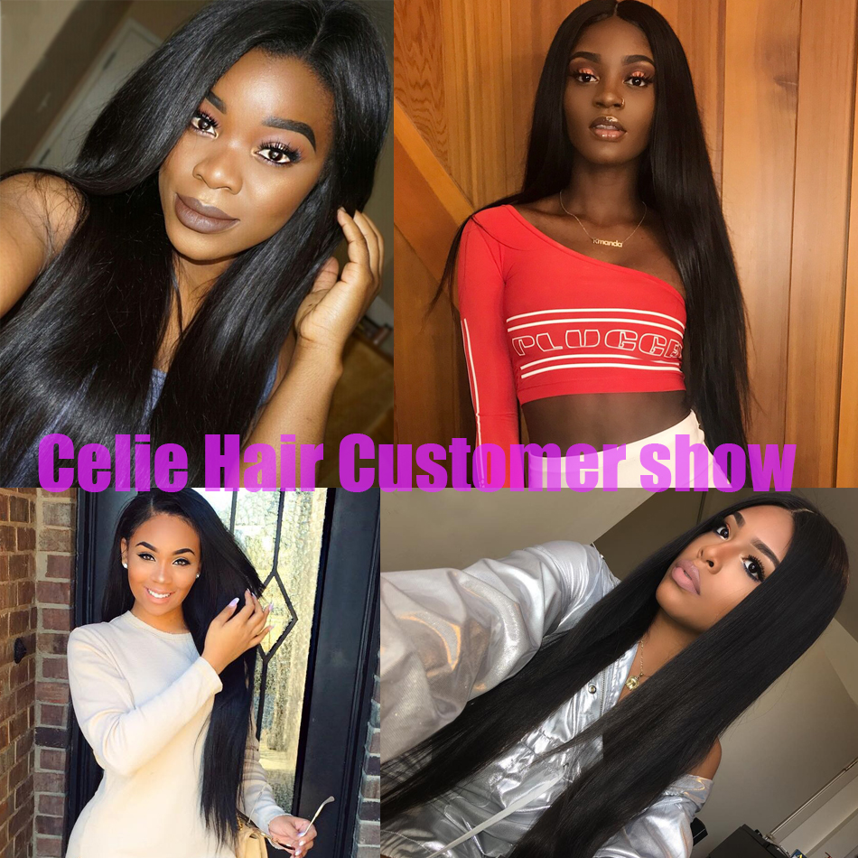 Celie-Hair-Brazilian-Straight-Hair-Bundles-With-Frontal-Remy-Lace-Closure-Frontal-With-Bundles-Human-Hair