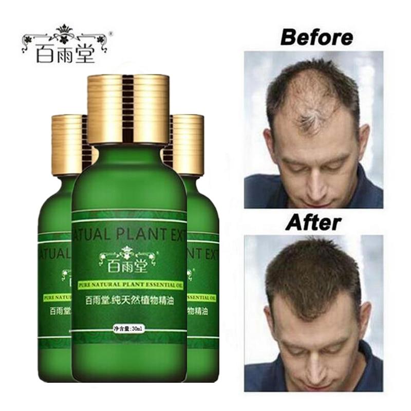 Hajápolás Hair Growth Essential Oils Essence Original Hiteles 100% - Hajápolás és hajformázás - Fénykép 4