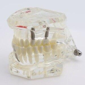 Image 2 - Dental Zähne Modell Implantat und Restaurierung Modell Transparent Studie Analyse Demonstration Zähne Modell Mit Restaurierung Brücke