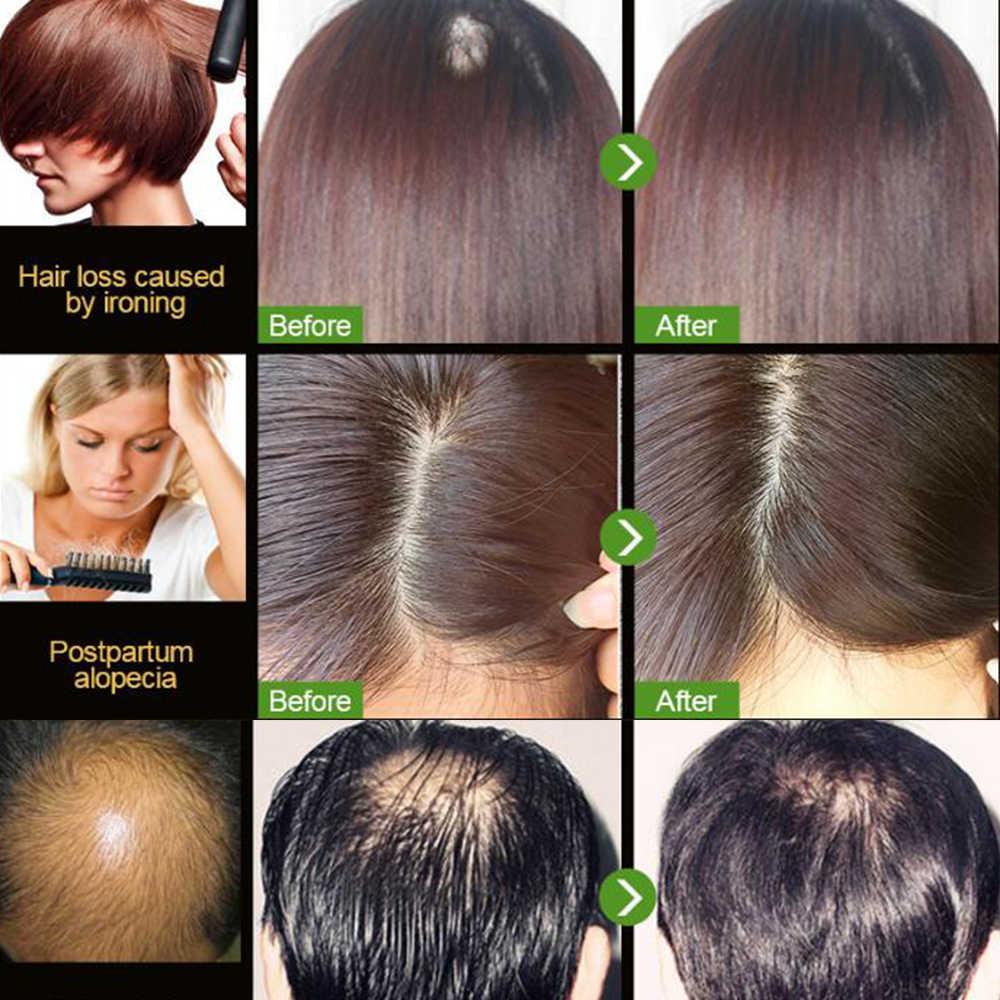 Chăm Sóc tóc Tóc Nhanh Chóng Tăng Trưởng Dầu Chống Rụng Tóc Sửa Chữa Hư Hỏng Và Tóc Khô Dầu Drop Vận Chuyển Massage Thạch Cao d271