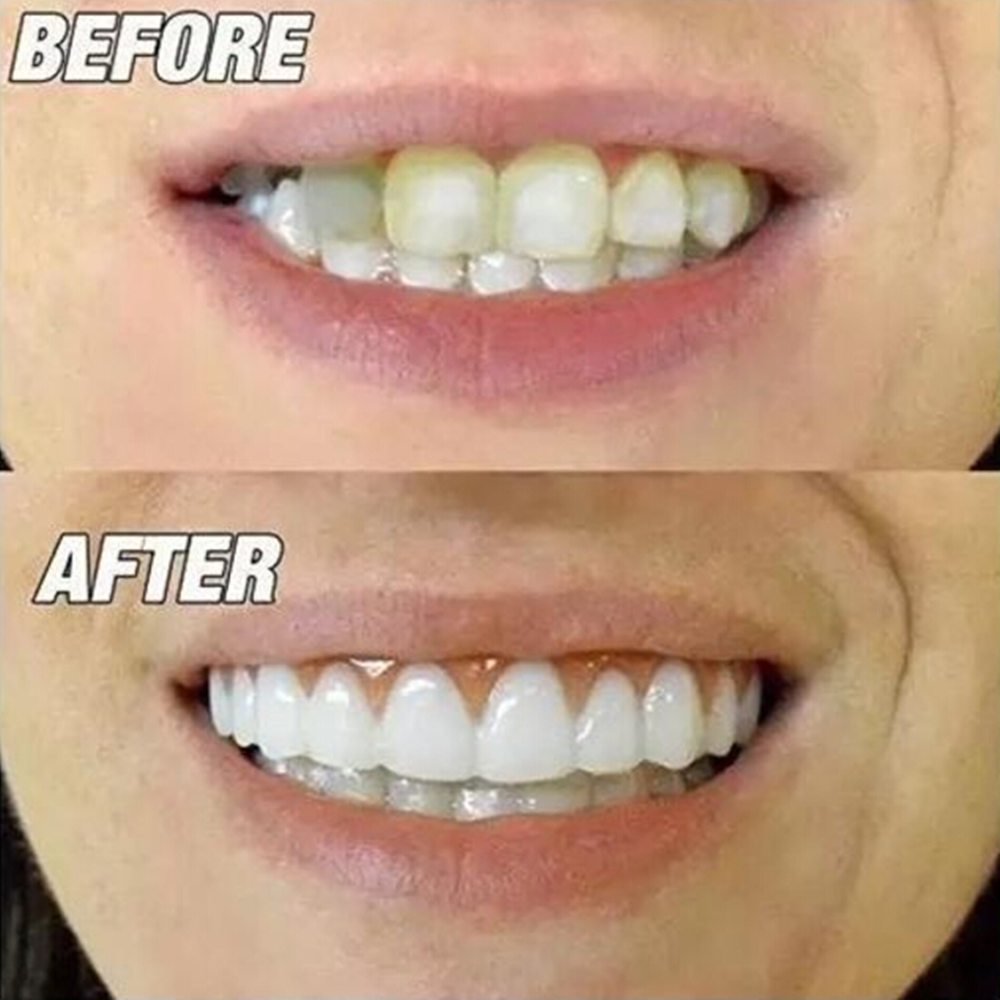Whitening Denture Sleeve Teeth Whitening Instant Smile Comfort Fit Flex Teeth Top Cosmetic Veneer One Size Universal