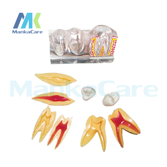 1 set Dental Implant Disease Teeth Model with Restoration Bridge Dentist for Medical Science Teaching 4 times teeth model1 set Dental Implant Disease Teeth Model with Restoration Bridge Dentist for Medical Science Teaching 4 times teeth model