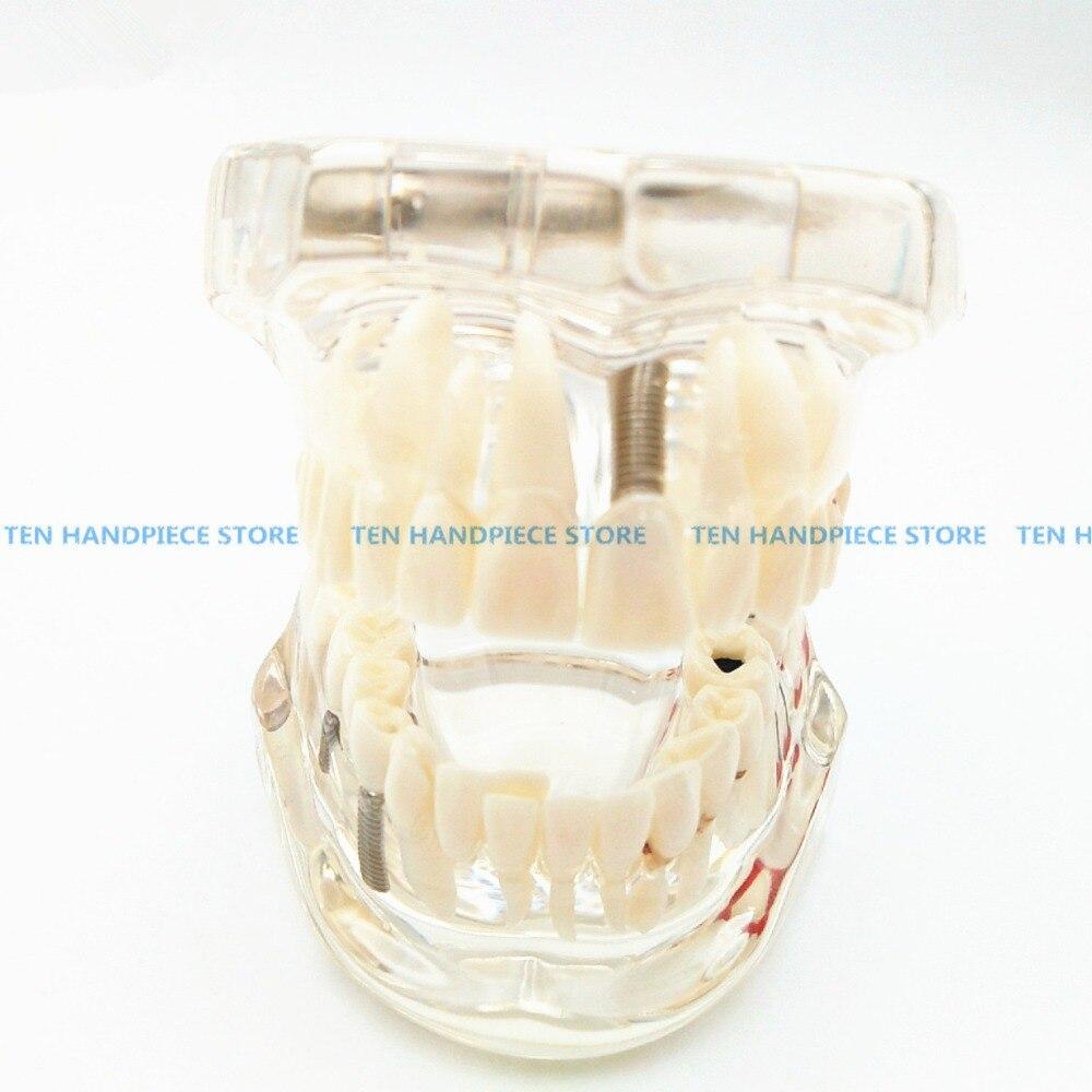 2018 bonne qualité implant dentaire démonstration support Simulation Caries dents modèle dents amovible dentiste