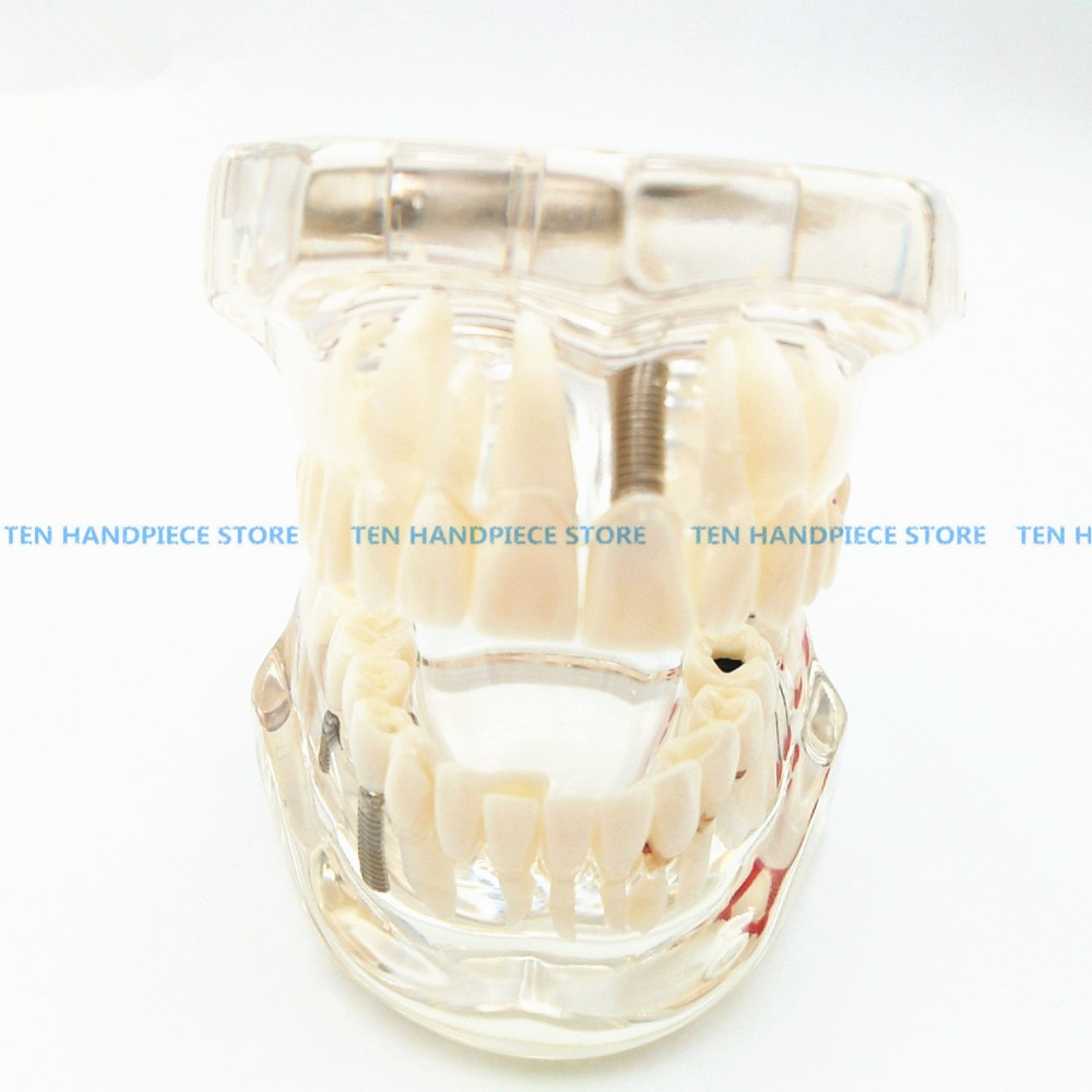 2018 good quality Dental implant Demonstration Bracket Simulation Caries Teeth Model teeth removable Dentist hot teeth development models teeth and jaw development model dental teeth models