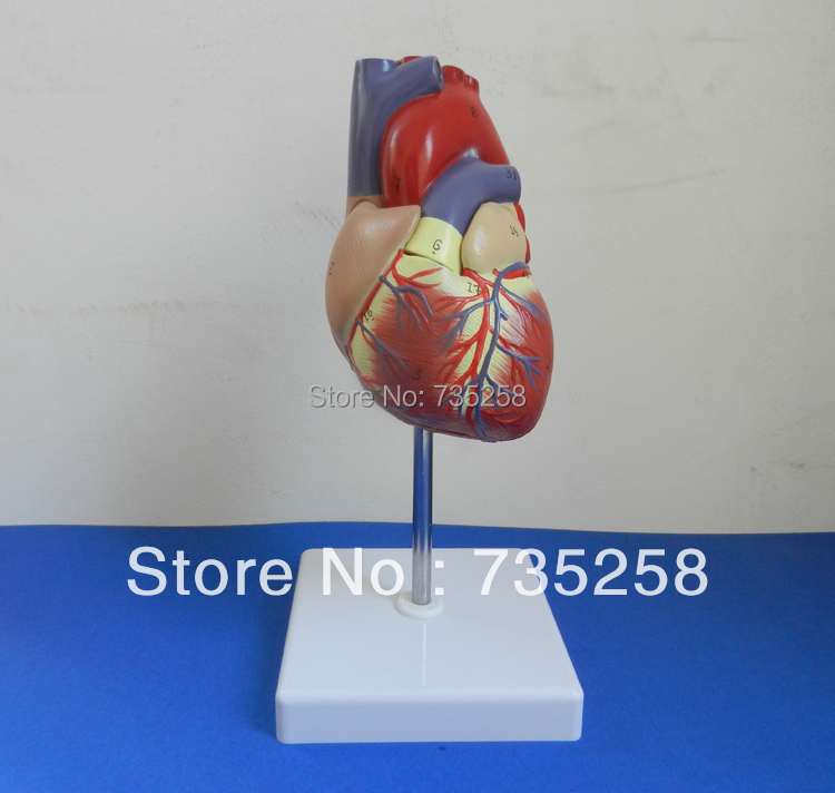 1:1 Simulation Model Of Cardiac Anatomy ,Human Heart Model estimation of shrinkage of cast al si alloy using simulation