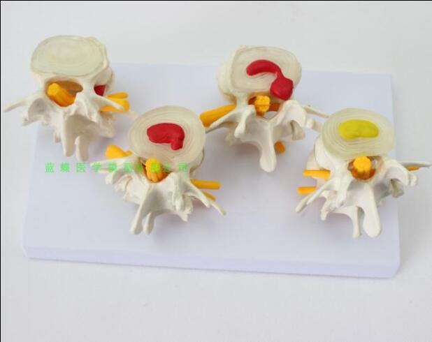 The 4-stage lumbar vertebra (disease) variant model skeleton (disease) theory model skeleton/deformed spine spine demonstration model lumbar vertebral spine model pathological vertebrae model quadrilateral lumbar disease model medical art