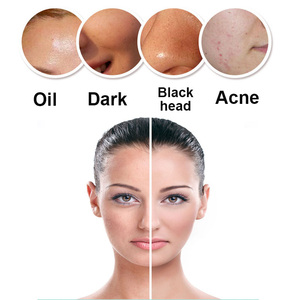 Image 3 - Limpador de rosto de silicone elétrico recarregável à prova dwaterproof água facial maquiagem profunda poros escova limpeza esfoliante antarestec pf60