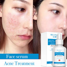 30ML Acne Treatment face serum Shrink pores essence facial  skincare skin lightening