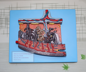 Placenta Tissue Model,Placenta Amplification Model,Female Placenta Tissue Structure Model фото