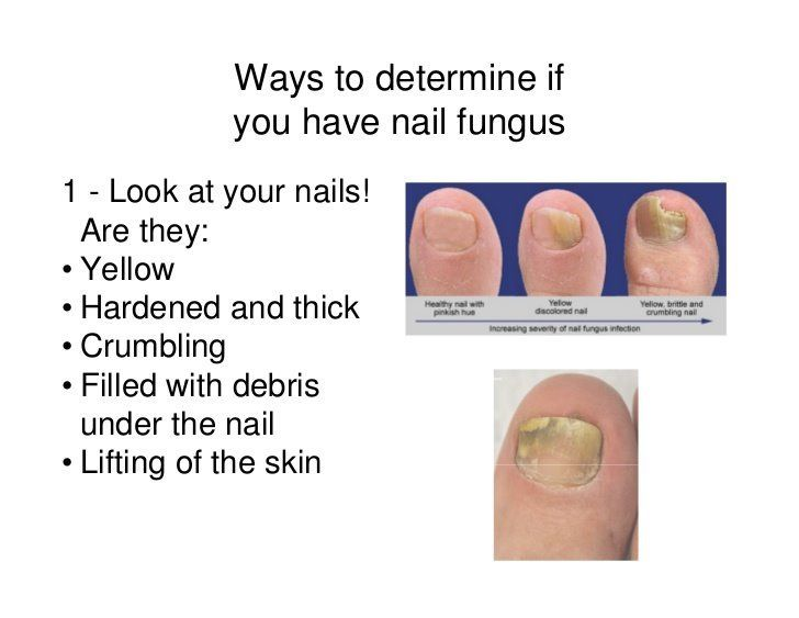 Nail Fungus Treatment for Toe & Finger Nail Fungal Infections #1 ...