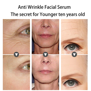 Image 4 - Fonce Anti Wrinkle Remover Facial Serum Plant Anti Aging Lifting Firming Face 25 55 Age Argireline Six Peptides Essence 30ml